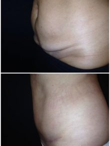 Mini Addominoplastica dall'ombelico in giù con liposuzione addome e fianchi
