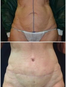 Addominoplastica Prima e Dopo