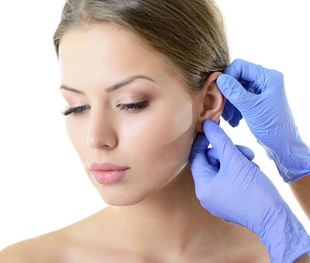 Otoplastica intervento orecchie a sventola