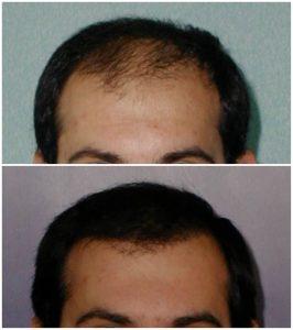 Trapianto capelli Prima Dopo foto risultati autotrapianto capelli tecnica fue