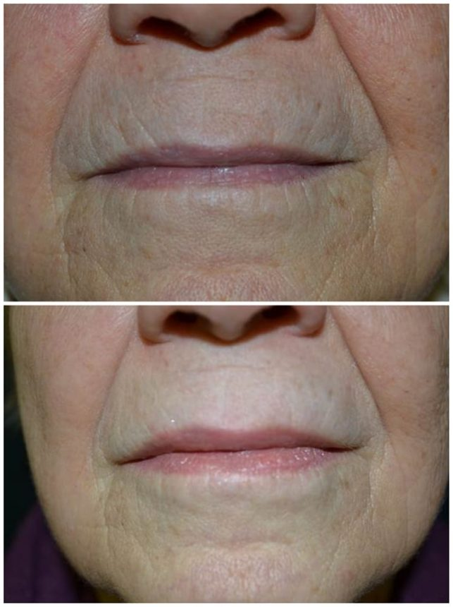 Filler Acido Ialuronico riempimento rughe viso Prima e Dopo