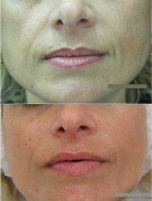 Laserterapia Fraxel Ringiovanimento Prima e Dopo