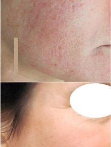 Laserterapia Laser frazionato e CO2 Cicatrici Acne Prima e Dopo