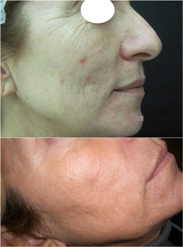 Laserterapia Laser frazionato e CO2 rughe macchie cicatrici acne Prima e Dopo