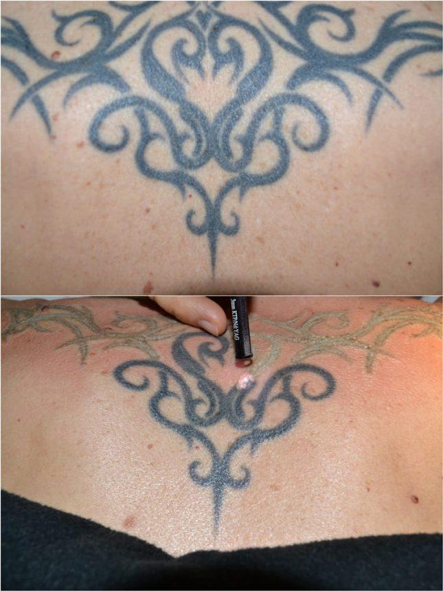Laserterapia Laser Q-Switch Rimozione tatuaggi Prima Subito Dopo