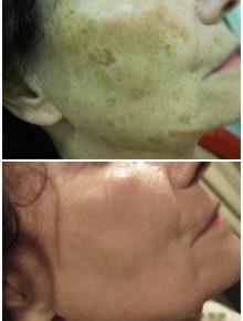 Laserterapia Macchie Prima e Dopo
