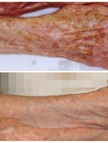 Laserterapia Q Swich Macchie Braccia Mani Prima e Dopo