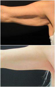 Lifting Braccia Prima Dopo eliminare braccia flaccide foto risultati