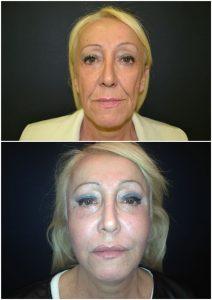 Lifting Viso Prima Dopo intervento lifting facciale ringiovanimento viso chirurgia estetica