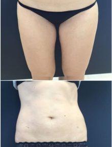 Liposuzione Addome e Fianchi Prima e Dopo