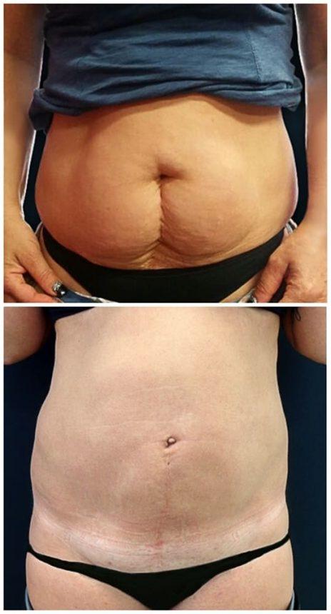 Liposuzione Addome Fianchi Prima e Dopo