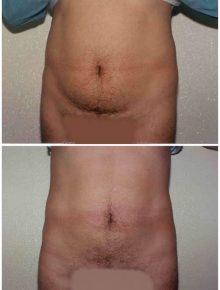 Liposuzione Addome uomo Prima e Dopo