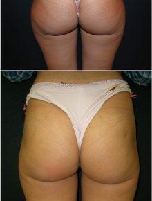 Liposuzione cosce glutei Prima e Dopo
