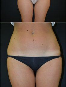 Liposuzione Coulotte de Cheval Prima e Dopo