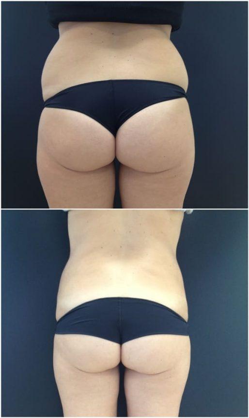 Liposuzione Fianchi Coulotte de Cheval Prima e Dopo