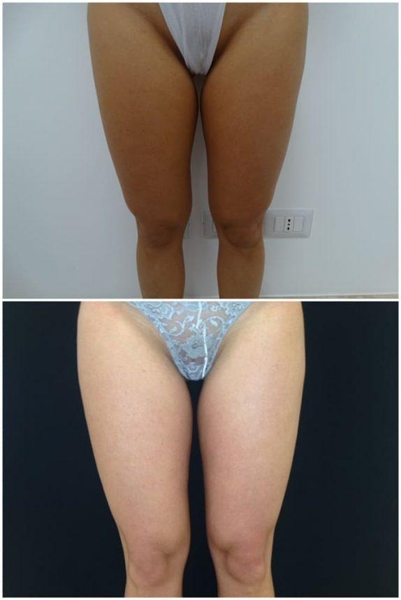 Liposuzione Gambe Prima e Dopo