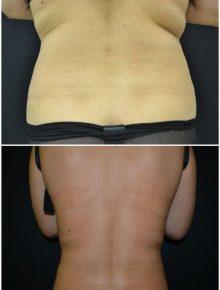 Liposuzione Schiena Prima e Dopo