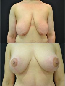 Mastopessi dopo dimagrimento Prima e Dopo