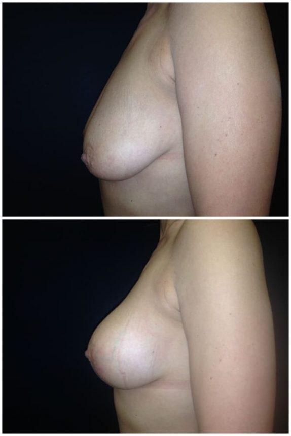 Mastopessi protesi rotonde 245 Prima e Dopo
