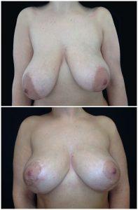 Mastoplastica Riduttiva Prima Dopo foto risultati intervento riduzione seno troppo grande