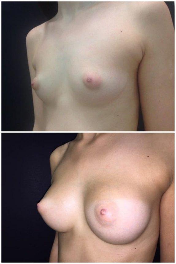 Mini Mastoplastica Additiva protesi 205 Prima e Dopo