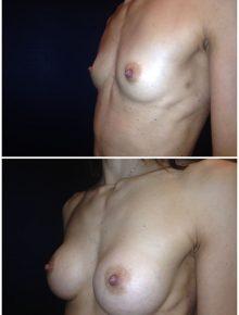 Mini Mastoplastica Additiva protesi anatomiche 185 Prima e Dopo