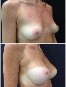 Mini Mastoplastica Additiva protesi anatomiche 210 Prima e Dopo