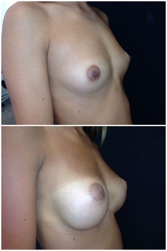 Mini Mastoplastica Additiva protesi rotonde 205 Prima e Dopo
