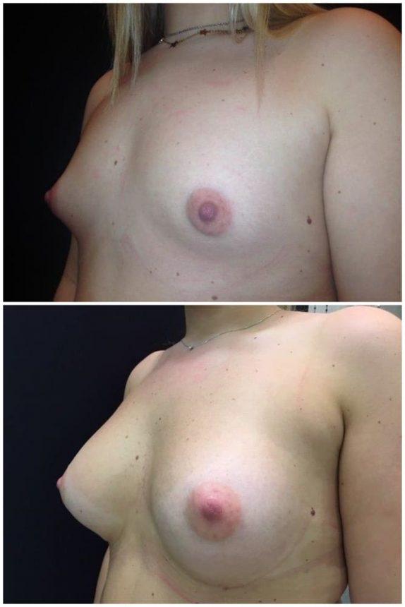 Mini Masto plastica Additiva protesi rotonde 285 Prima e Dopo