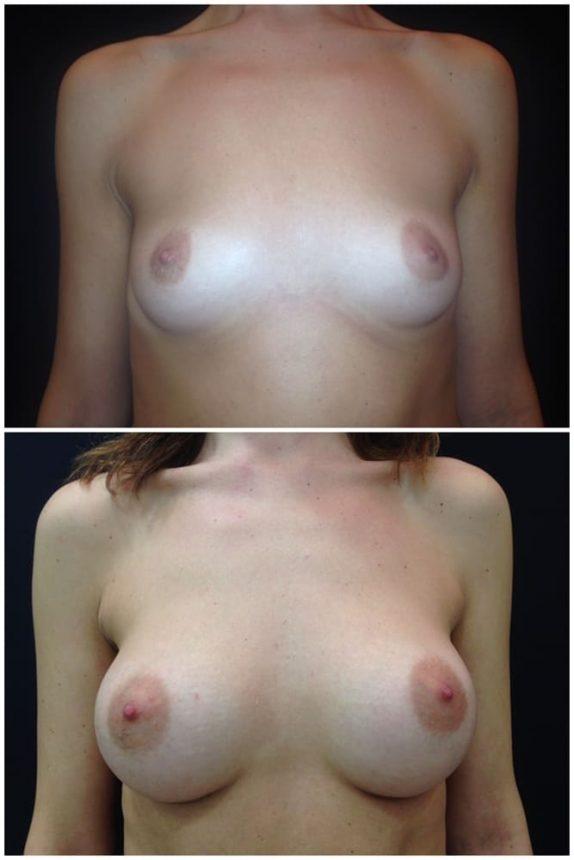Mini Mastoplastica Additiva protesi rotonde Prima e Dopo