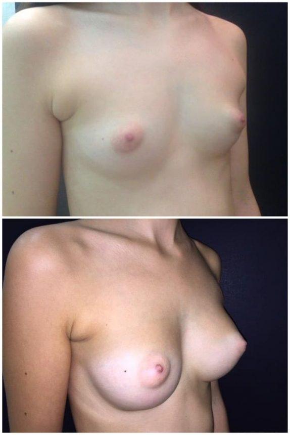Mini Mastoplastica protesi 205 Prima e Dopo