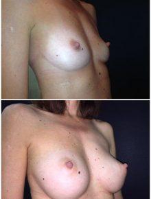 Mini Mastoplastica protesi diverse Prima e Dopo