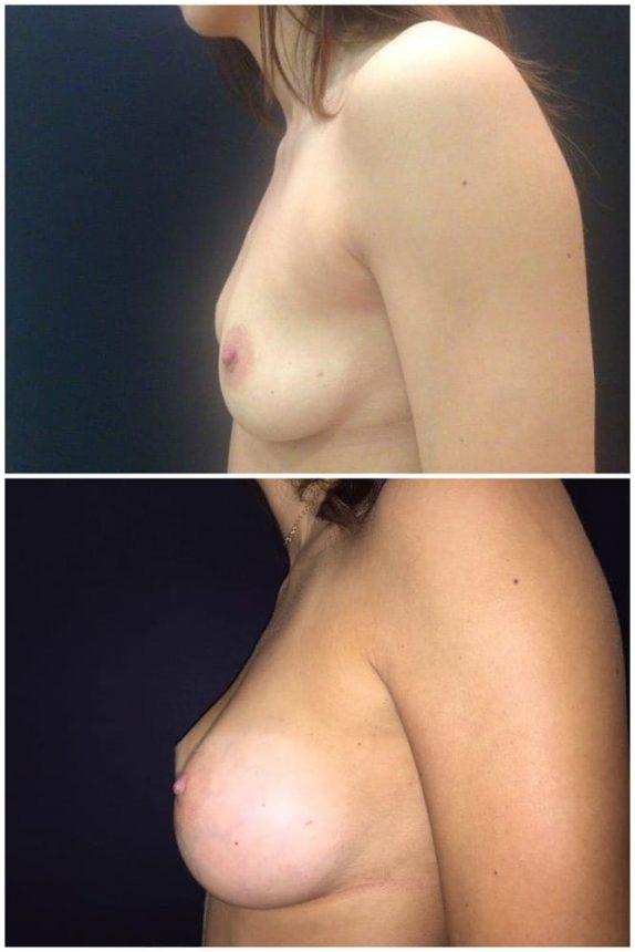 Mini Mastoplastica protesi rotonde 205 Prima e Dopo