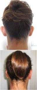 Otoplastica Prima e Dopo foto risultati intervento orecchie a sventola