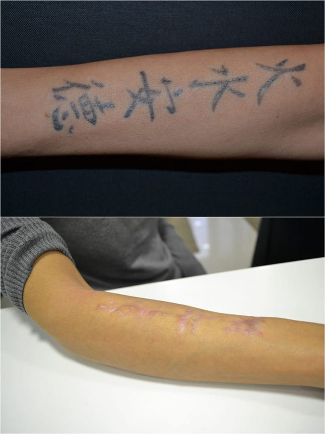 Laserterapia Laser Q-Switch Rimozione tatuaggi Prima e Dopo