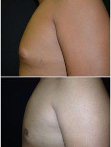 Lipo Ginecomastia Prima e Dopo