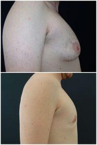 Ginecomastia-prima dopo intervento-riduzione-seno-maschile foto risultati