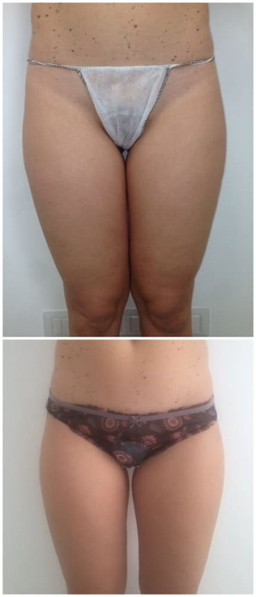Liposuzione Cosce Prima e Dopo