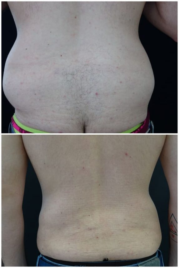 Liposuzione Schiena Uomo Prima e Dopo