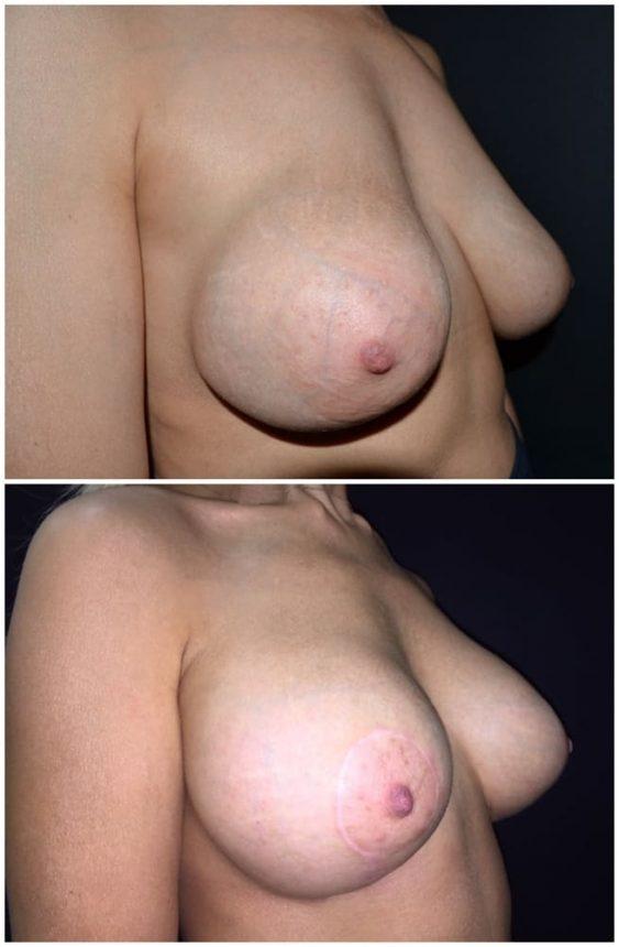 Sostituzione protesi con pessi Prima e Dopo
