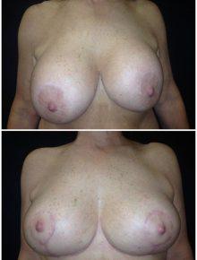 Sostituzione protesi impianto sottoghiandolare con pessi Prima e Dopo