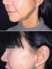 Lifting viso terzo medio e sotto mento prima dopo Londeiclinic