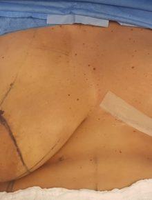 Mastopessi con protesi prima dopo work in progress