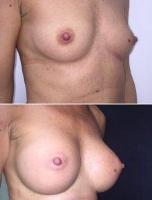 Mastoplastica additiva sottomuscolare prima dopo protesi anatomiche 335cc