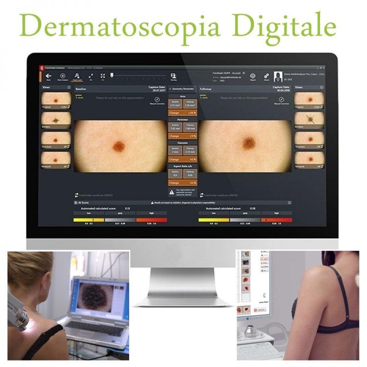 dermatoscopia digitale mappatura nei londeiclinic