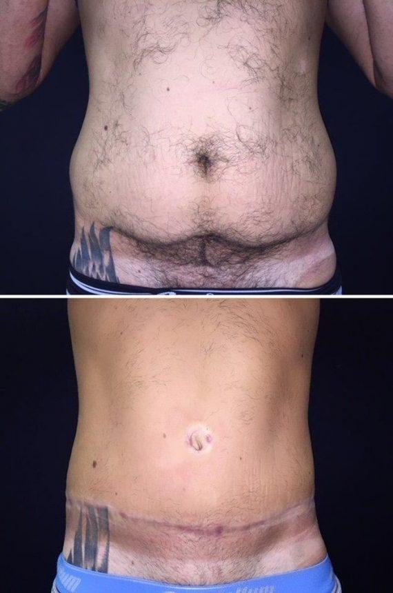 Addominoplastica e liposuzione fianchi uomo prima dopo frontale