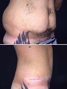 Addominoplastica e liposuzione fianchi uomo prima dopo laterale
