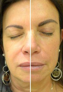 Blefaroplastica superiore Prima Dopo foto risultati intervento palpebre superiori