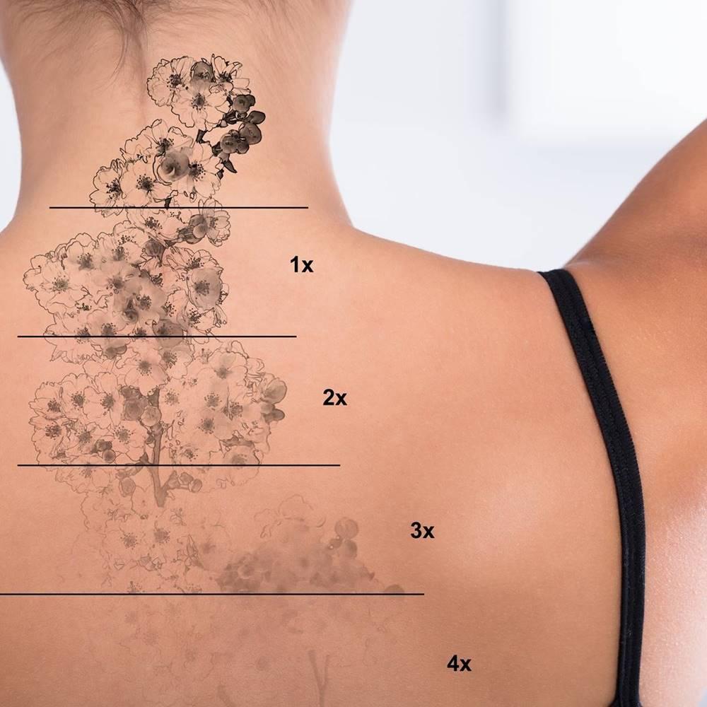 Rimozione tatuaggi con il laser