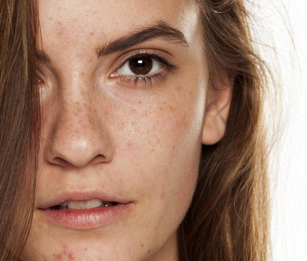 curare acne terapie